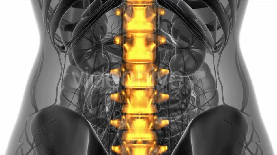 Backache in Back Bones - Download Videohive 20945429