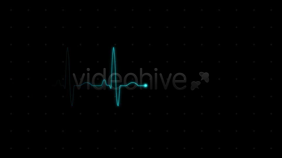 EKG (Heartbeat Monitor Electrocardiogram) - Download Videohive 615689